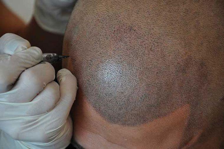 schedelpigmentatie-voorbeeld (1)